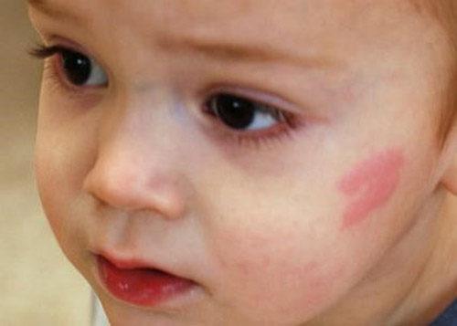 Розовое пятно на лице у ребенка