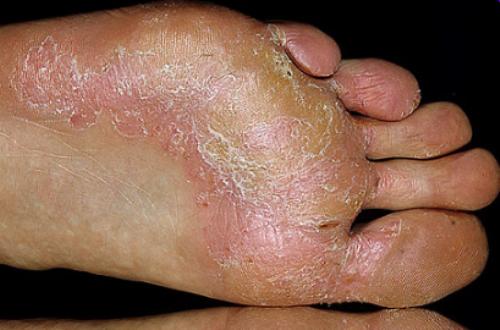 Межпальцевый грибок с инфекцией