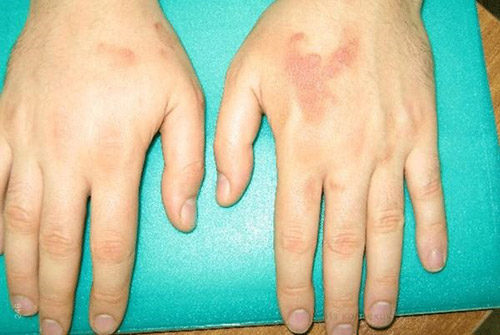 Подострый дерматит