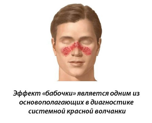 Основной метод диагностики