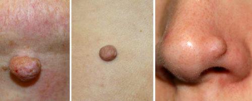 Фиброма кожи