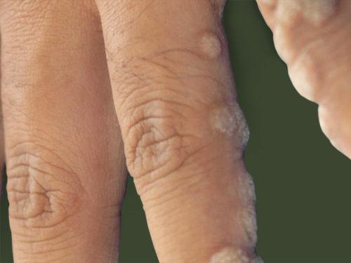 Бородавки на пальце руки
