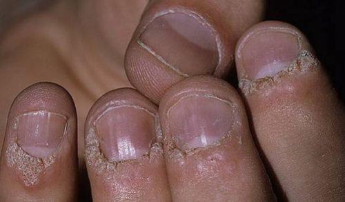 Бородавки вокруг ногтя