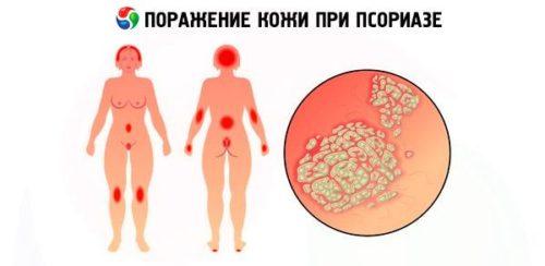 Признаки псориаза