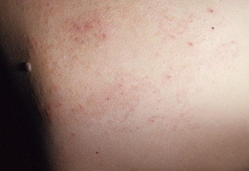 Герпетиформный дерматит.