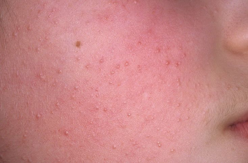 Кератоз на лице у ребенка