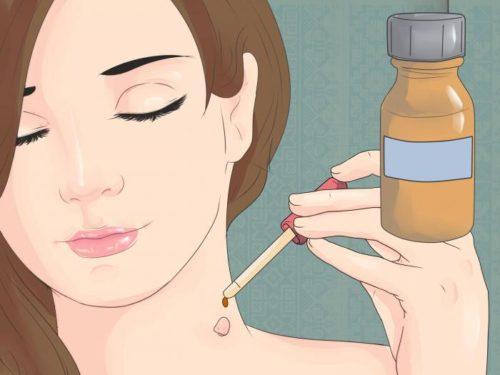 Нанесение препарата на кожу