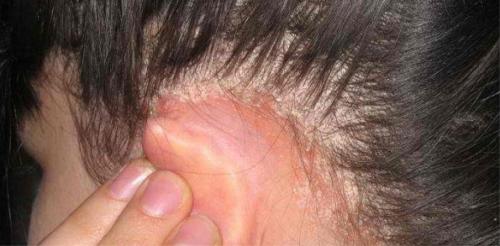 Себорея за ухом