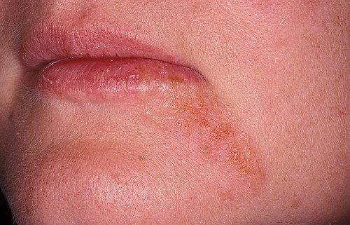 периоральный дерматит
