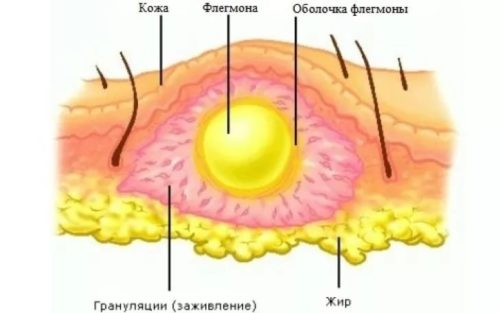 флегмона