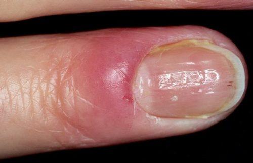 Покраснение на пальце