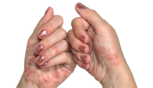 Склеродермия на руках