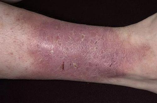 Красное пятно на ноге