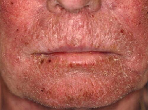 Ксеродермия на лице