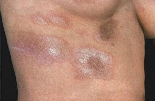 Диффузная форма склеродермии
