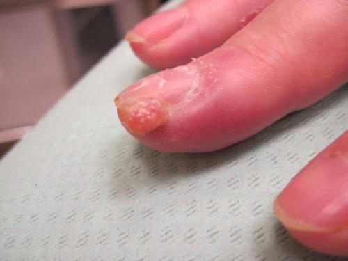 Гранулема возле ногтя