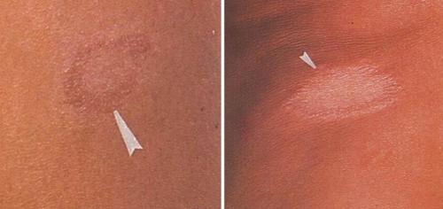 Пораженный лепрой участок кожи