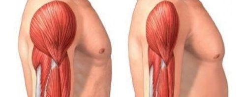 Атрофирование мышц