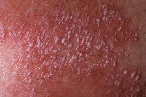 Лихеноидная форма туберкулеза