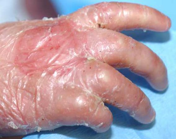 Тонкая кожа на руках