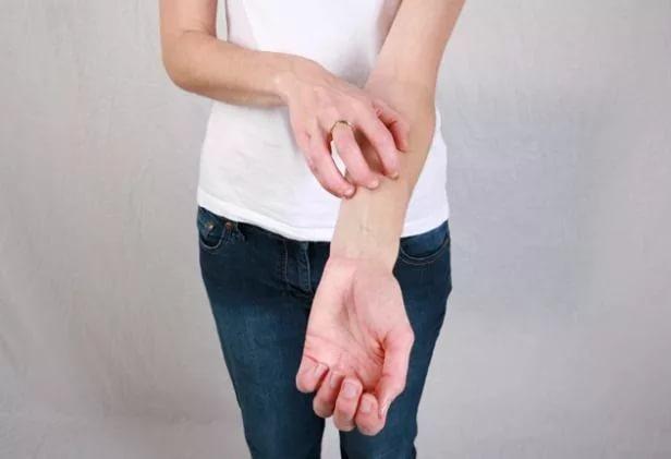 Девушка чешет руки