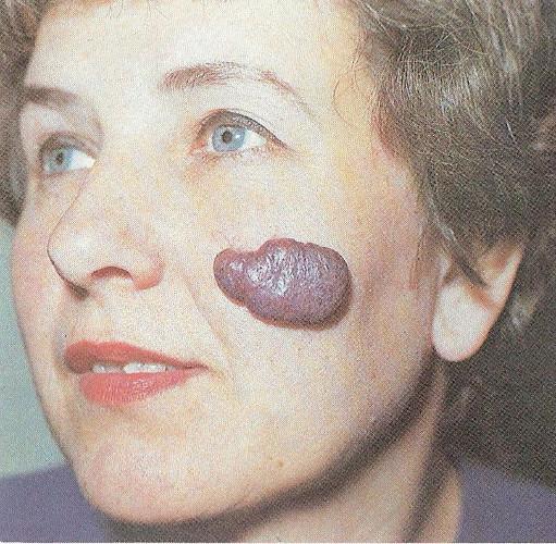 Гемангиома на лице у женщины