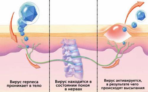 Принцип проникновения заболевания