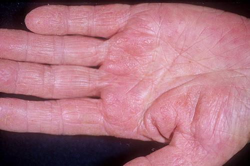 Дисгидротическая экзема на руках