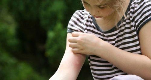 Покраснения на руке у ребенка