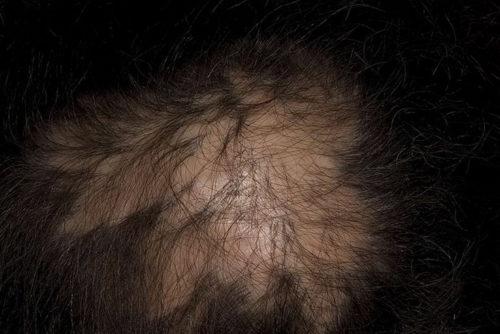 Лысина на голове