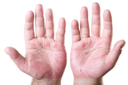 Ручной дерматит