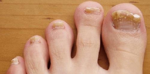 Микроспория на ногтях
