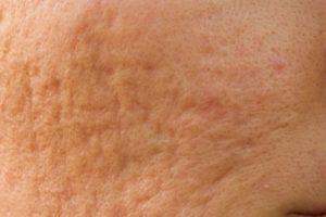 Как разгладить кожу на лице. Эффективные препараты для удаления рубцов от прыщей