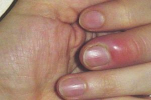 Нарыв возле ногтя