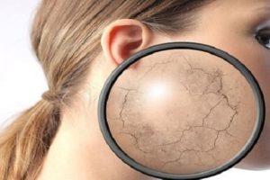 Узнайте как избавиться от ангидроза кожи