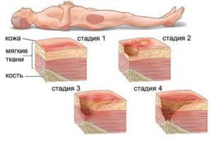 4 стадии пролежней